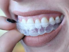 Would it be wrong to ask my dentist for a new set of whitening trays? : Dentistry