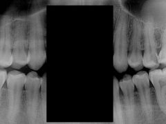 Can you please check photo of my teeth for cavities? : Dentistry